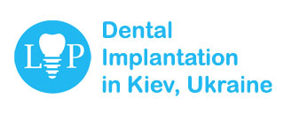 Dental Implantation in Kiev, Ukraine | Dental Tourism